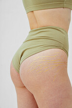 Close-up Of Golden Stretch Marks On The Buttocks