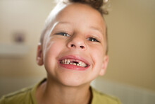 Grinning Boy Shows Off Missing Top Front Teeth