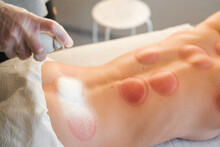 Applying Soothing Cream After Hijama Therapy