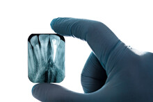 Radiography Imaging Upper Canines Root Canal Hand In Glove Isolated