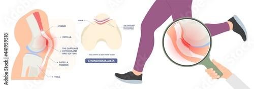 Canvastavla patella pain cap knee tear Torn injury Swelling bone leg exercise muscle jumper'