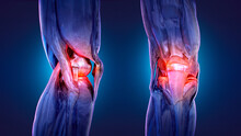 Painful Knee, Joint Pain, Arthritis, Osteoarthritis. Meniscus, Kneecap, Tendons, Bones, Ligaments Skeleton X-ray 3D Medical Anatomy Illustration. Workout Injury, Knee Replacement, Arthroplasty Concept