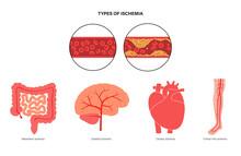 Types Of Ishemia