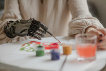 Girl With A Prosthetic Arm Painting At Home