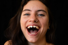 Close Up Of A Beautiful Woman Smiling With Diastema