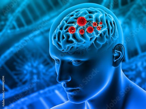 3d, render, illustration, brain, dementia, mental health, tumor, tumour, cancer, Fotobehang