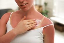 Woman Applying Cream On Sunburn At Home, Closeup