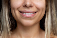 Cropped Shot Of A Face Of A Young Caucasian Smiling Blonde Woman With Dimples On Her Cheeks. Close Up