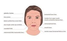Facial Wrinkles, Illustration