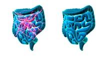 Healthy And Unhealthy Intestines, Conceptual Illustration