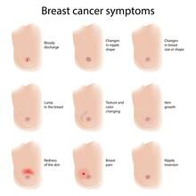 Breast Cancer Symptoms, Illustration
