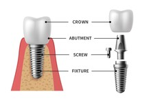 Tooth Implant. Realistic Implant Structure Pictorial Models Crown. Abutment, Screw Denture Orthodontic Implantation Teeth Vector Set