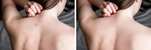 Before And After Treatment Acne Pimples On Skin Back Of Teenager.