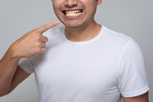 Hispanic-looking Mexican Man With Yellow Teeth, Chinese-haired Young Man In White Shirt With Gray Background Back, Points His Finger To His Mouth