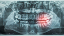 Panoramic Dental X-Ray, With Red Painful Area
