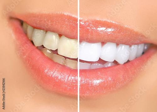 teeth whitening #23842166
