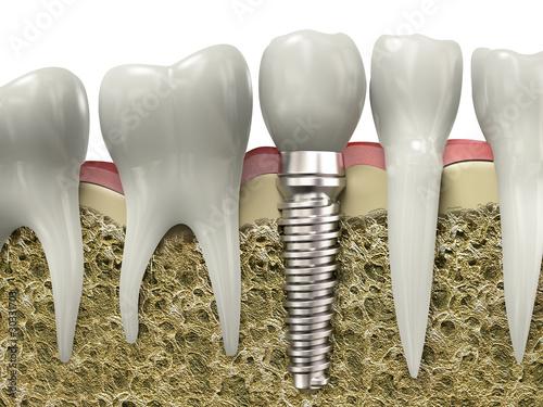 Dental implant #30331703