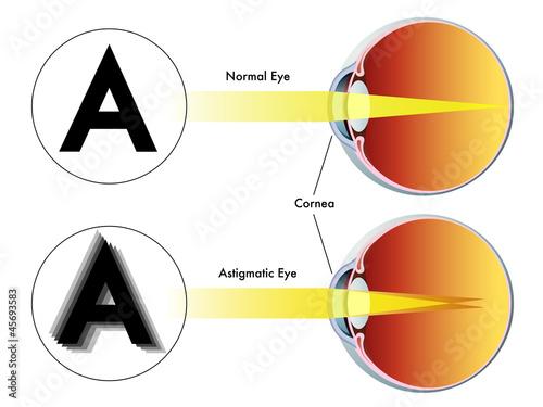 Fotografie, Obraz astigmatismo