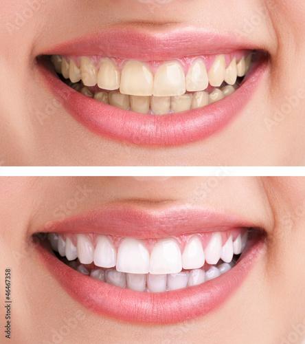 Obraz na plátně healthy teeth and smile