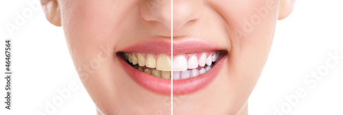 Canvas Print healthy teeth and smile