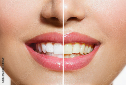 Woman Teeth Before and After Whitening. Oral Care #59508999