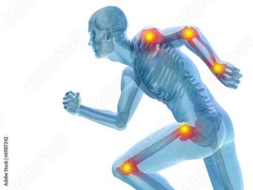 Photo Conceptual human pain anatomy