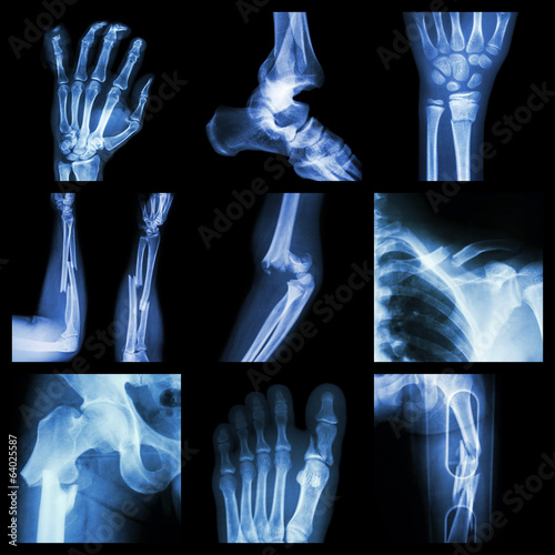 Canvas Print Collection of bone fracture