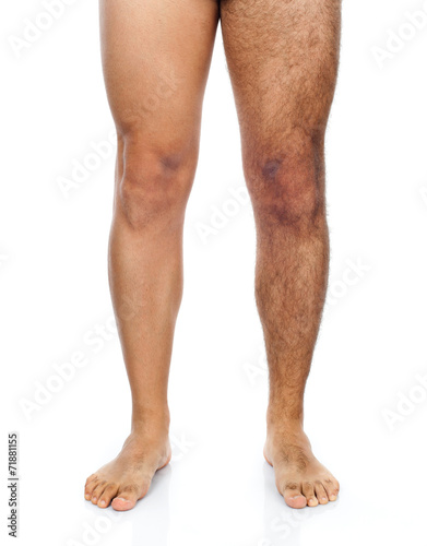 Stampa su Tela Male hair removal on legs