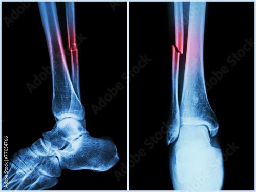 Fotografia, Obraz Fracture shaft of fibula bone ( leg bone ) .  X-ray of leg