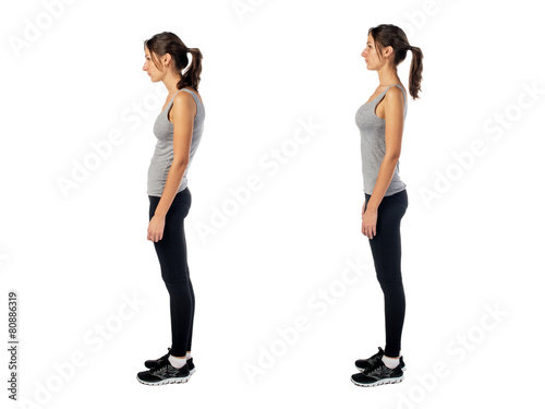 Woman with impaired posture position defect scoliosis and ideal
