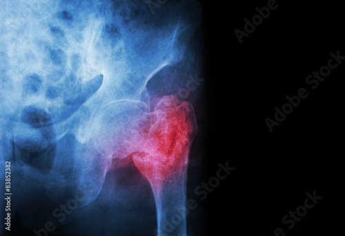 Carta da parati intertrochanteric fracture left femur ( Thigh bone )