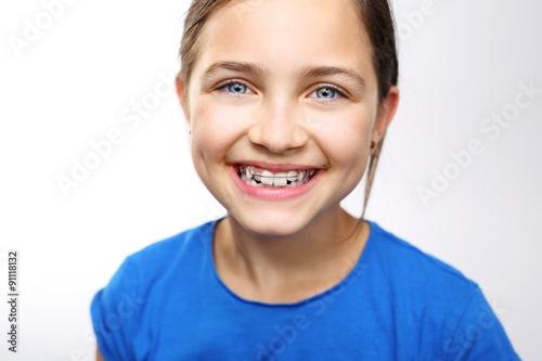 Dziecko w aparaciku ortodontycznym, sposób na proste zęby i piękny uśmiech