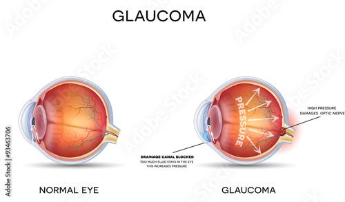 Canvas Print Glaucoma