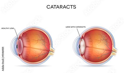 Photo Cataracts