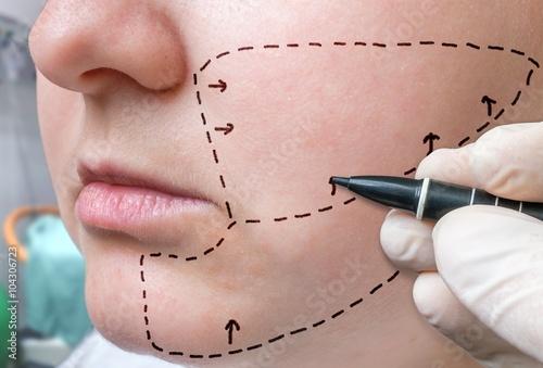 Facial plastic surgery Fototapeta