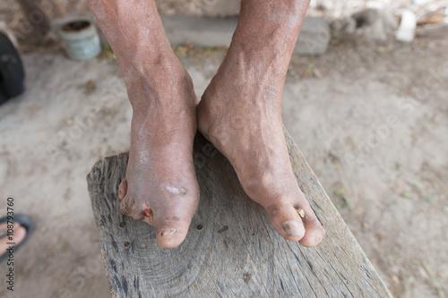 Carta da parati Hansen's disease,closeup hands of old man suffering from leprosy