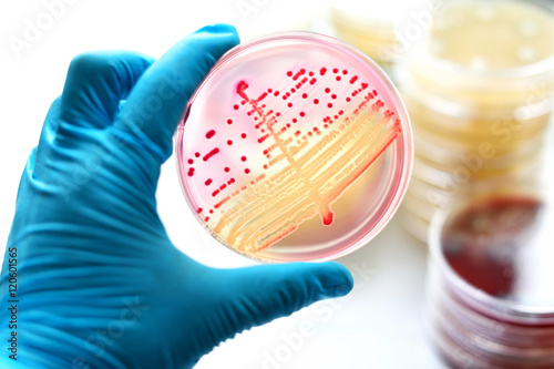 Photo Colonies of bacteria in MacConkey agar