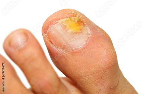 Stampa su Tela Onychomycosis fungal infection of the nail