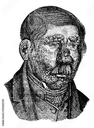 Fotografia Leprosy or Hansen's Disease, vintage engraving