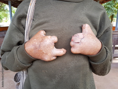 Carta da parati closeup two hands without fingers of asian old man with pullover suffering from leprosy, Thailand