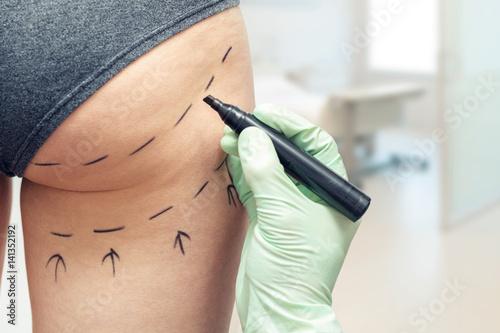 Fotografia plastic surgeon marking womans body for surgery