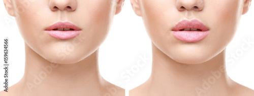 Fotografia Female lips before and after augmentation procedure