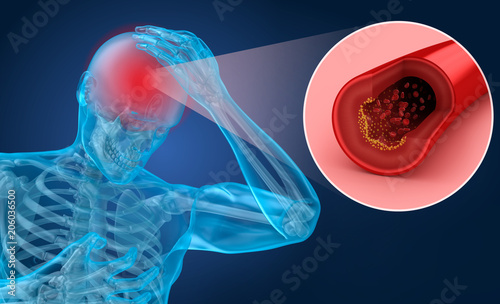 Photo Brain stroke : 3d illustration of the vessels of the brain and causes of stroke