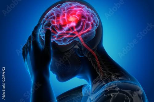 Canvas Print Schlaganfall - Blutversorgung im Gehirn