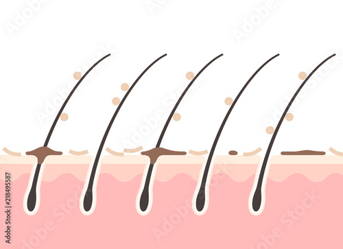 Fényképezés フケのある頭皮の断面図