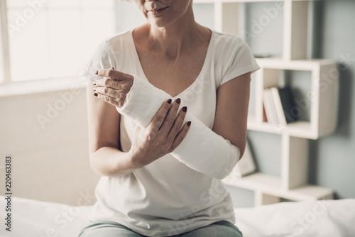 Fotografia, Obraz Close-up of Female Broken Arm in Plaster Cast