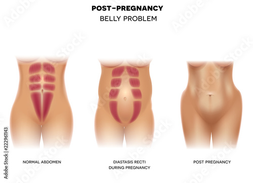 Canvas Print Female body before pregnancy with normal muscles, Diastasis recti during pregnan