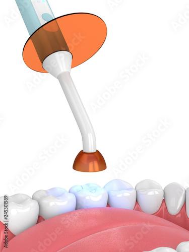 3d render of jaw with dental polymerization lamp and light cured inlay Tapéta, Fotótapéta