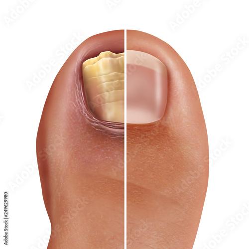 Carta da parati Fungal Nail Infection