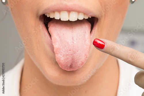 Obraz na plátně Woman having candidiasis pointing her tongue with finger